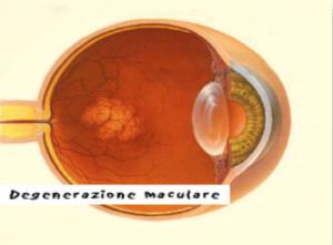 degenerazione-maculare-1