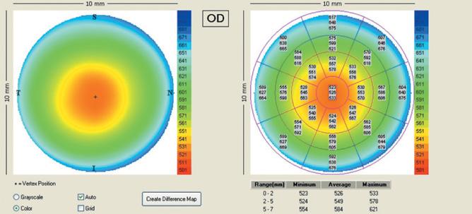 parchimetria-corneale