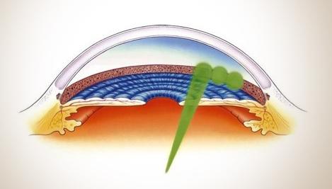 glaucoma chirurgia laser