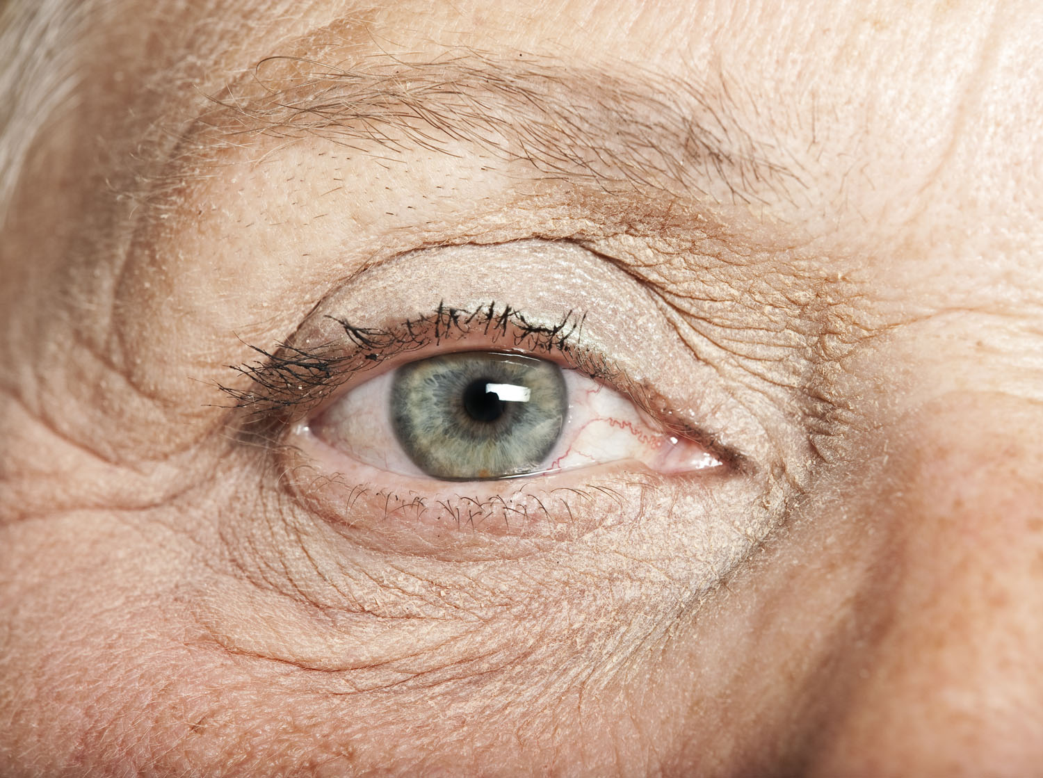 old people glaucoma