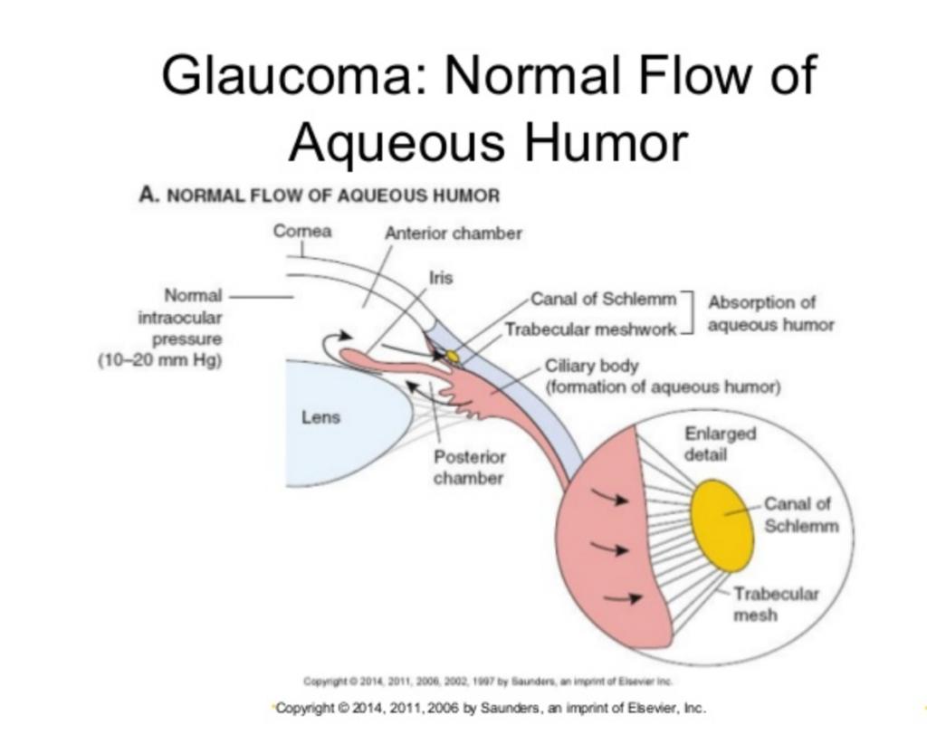 aqueous flow glaucoma